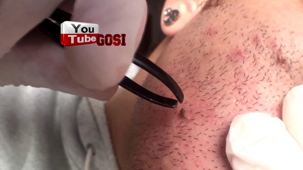 VIDEO: Man extracts ingrown hair that looks like blackhead