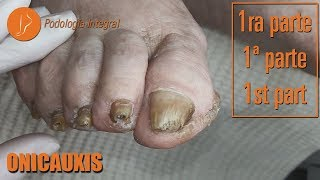 Onicauxis, onychomycosis and callosities (Part 1) - Onicauxis (Parte 1) [Podología Integral]