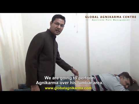 Dramatic improvement in severe Back Pain by Agnikarma (Thermal Cautery) - Ayurveda Pain Management