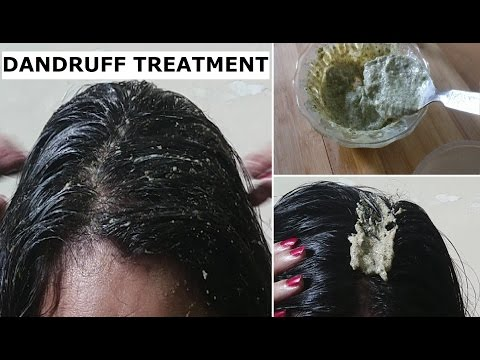 Remove Dandruff Permanently in 1 Day - Dandruff treatment at home for Hair Growth & long hair