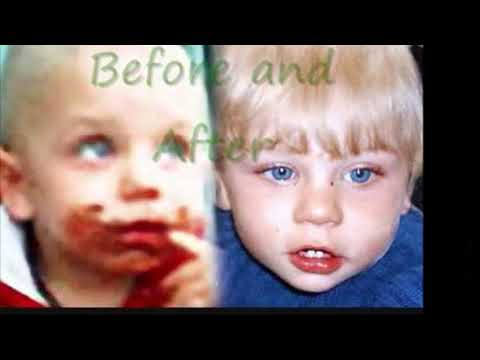 child abuse case study peter connelly This video was made in memory of baby p baby p died in 2007 after suffering terrible abuse, despite being on haringey's child  the peter connelly.
