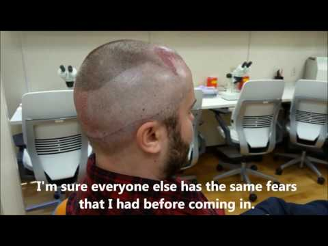 Patient IMMEDIATELY following an ARTAS robotic hair transplant talks about what it was like!