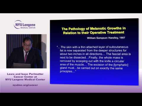 Melanoma: Surgical Management