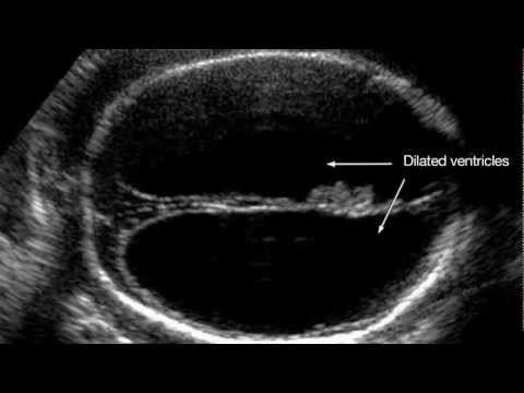 Ultrasound Training Assessment Of Fetal Growth And High Risk