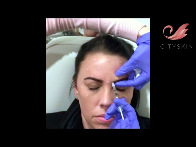 Frown line anti wrinkle treatment with Michelle Dodd | Cityskin Sydney