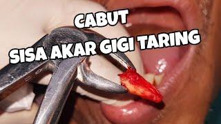 Impaksi Gigi Geraham Belakang |Molar 3.