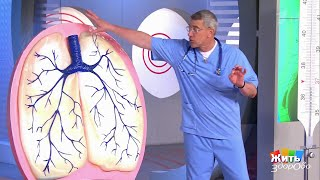 видео Крупозная пневмония: симптомы