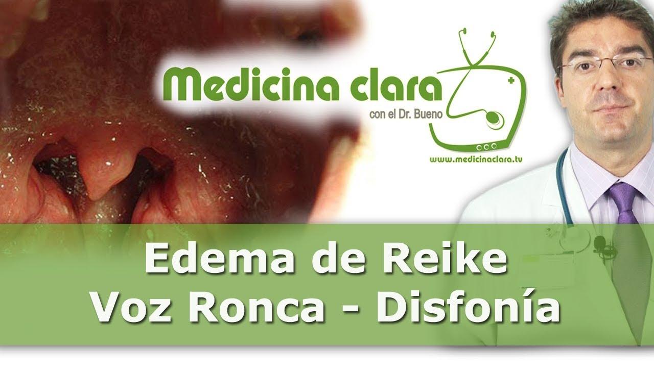Download Edema de Reinke | Voz ronca y disfonía | Vídeos de medicina en Youtube