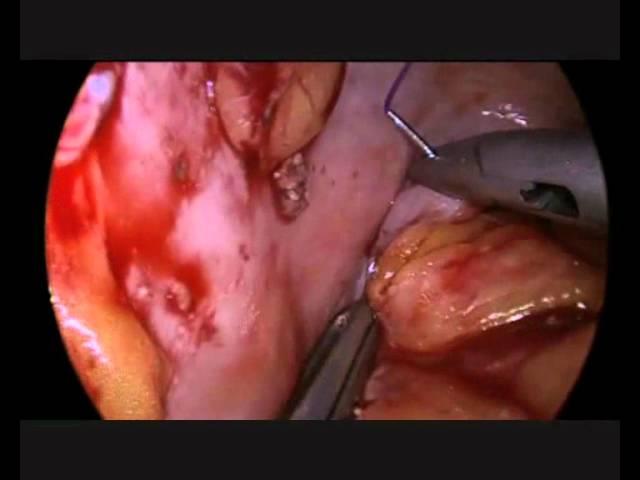 FILBLOC - Clinical Experience - #02