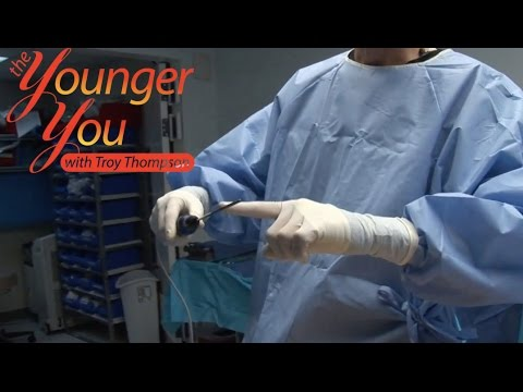 The Younger You - Episode 35 Liposuction