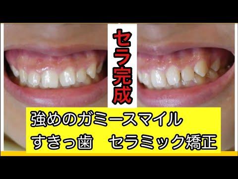 歯並びが悪いのとガミースマイルを治したくて