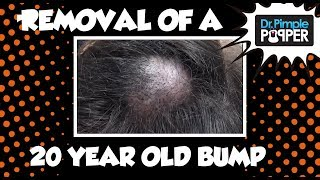 a 20 year old embarrassing bump on the scalp dr pimple popper