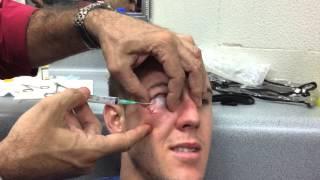 Bowen Cornish, post fight  stitches/face draining. Warning EXPLICIT LANGUAGE