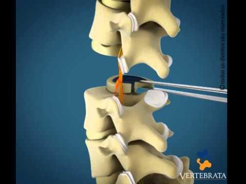 Tipos de cirurgia hernia de disco lombar