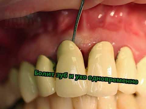 Болят зубы и ухо одновременно