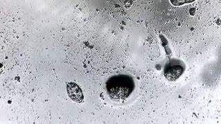 микробы под микроскопом, редкое зрелище!...