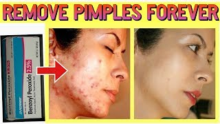 How to remove pimples forever || How to remove acne
