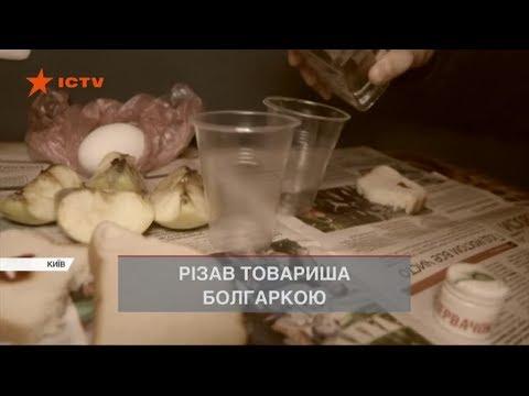 У Києві під час п'яної вечірки чоловік пошматував друга болгаркою