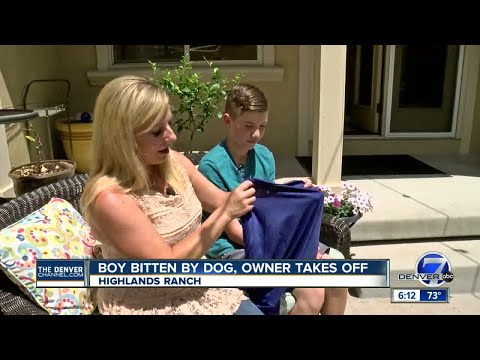 Highlands Ranch mom wants to find owner of dog who allegedly bit her son