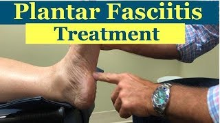AWESOME treatment for PLANTAR FASCIITIS (foot pain)