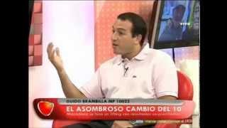 DR GUIDO BRAMBILLA EN NUNCA ES TARDE 02 03 15 Rejuvenecimiento facial, lifting, Maradona