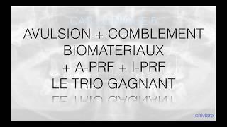 Régénération Osseuse Guidée associée à l'A-PRF+