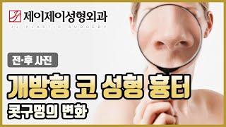개방형 코 성형 흉터 전후사진 - 제이제이성형외과이성형…