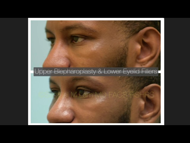 Dallas Upper Blepharoplasty/Eyelid Surgery & Lower Eyelid Filler Before and After