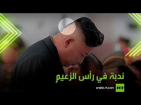 ندبة في رأس زعيم كوريا الشمالية  - نشر قبل 24 دقيقة