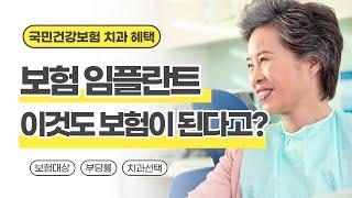 [서울손치과]부담되는 임플란트 비용, 임플란트도 보험이…