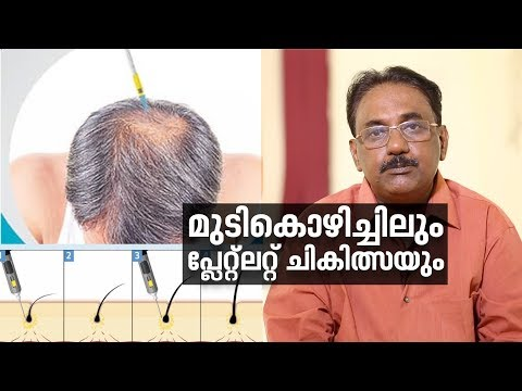 Hair Loss and Platelet-Rich Plasma (PRP)Treatment |Doctor