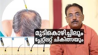 Hair Loss and  Platelet-Rich Plasma (PRP)Treatment  |Doctor Life |Web Special