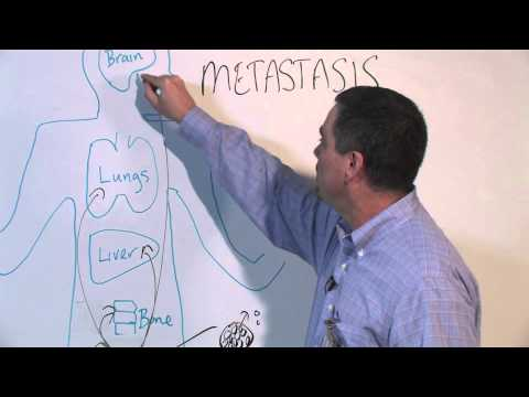How Cancer Spreads (Metastasis) - Michael Henry, PhD
