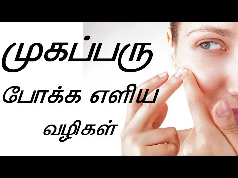 how to remove pimples in tamil