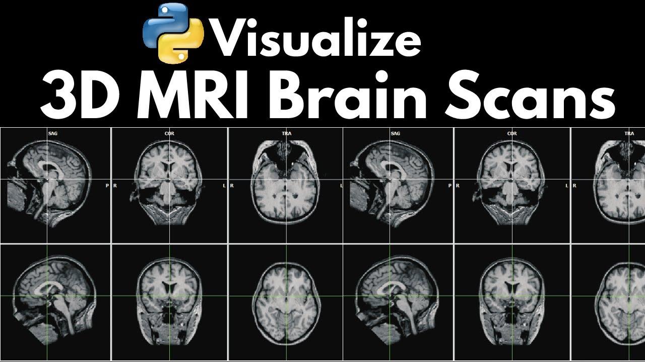 Neuroimaging: Visualize 3D MRI Brain Scans with Python