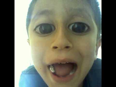 boy with big eye syndrome youtube