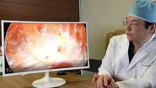 [DOCTOR EXPERT]คุณหมอซงแจยอน แนะนำเทคนิคผ่าตัดศัลยกรรมหน้าอกโดยวิธีส่องกล้อง lโรงพยาบาลศัลยกรรมกิริน