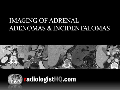Imaging Of Adrenal Adenomas & Incidentalomas