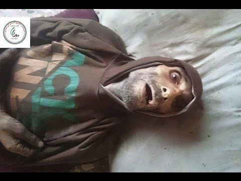 الامم المتحدة: المعاناة في مضايا لا تقارن بالوضع في مناطق اخرى من سوريا