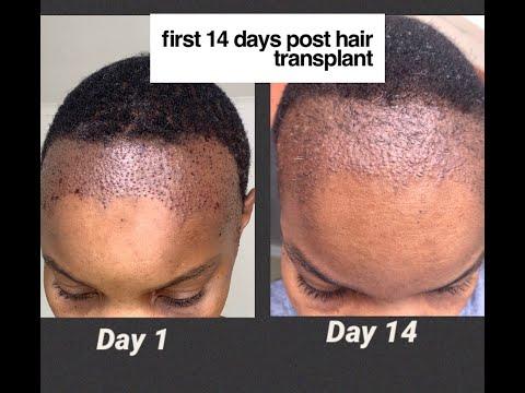 First 14 days post (FUT) Hair Transplant | #HairRestoration Ep. 06|Cape Town, South Africa