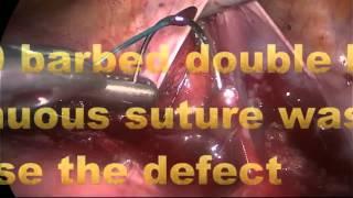 Assoc.Professor.Dr.Murat Api: Laparoscopic isthmocele repair