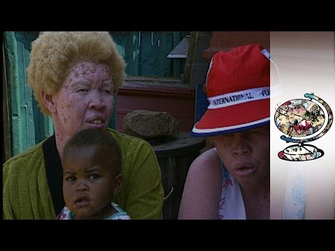 South African Albinos Are Being Shunned From Society