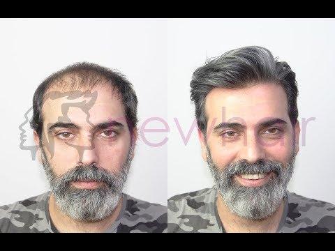 Protez Saç Uygulaması - Doğal Protez Saç Erkek