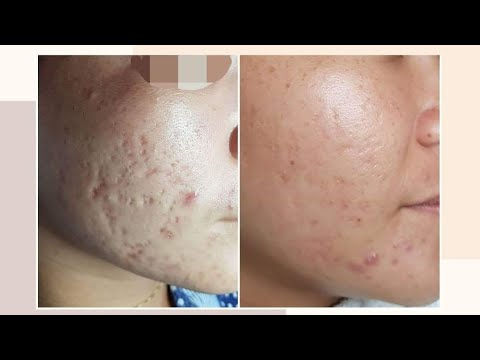 real-and-legit-acne-scars-treatment-(solusyon-sa-acne-scars-/-acne-scar-removal)-#acnescarjourney