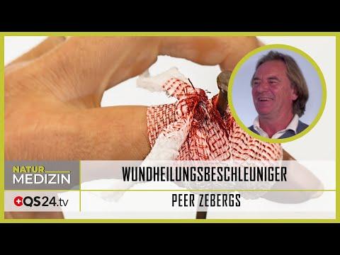 Wundheilungsbeschleuniger inklusive Narben | Naturmedizin | QS24 Gesundheitsfernsehen