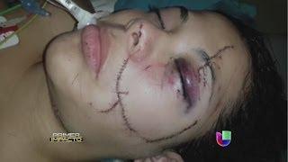 Repeat youtube video Una modelo fue desfigurada en Ecuador - Primer Impacto