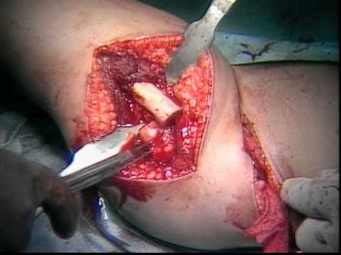 Hip Surgery: Operative Treatment of DDH