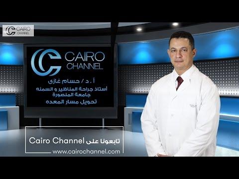عملية تحويل مسار المعدة الحل الأمثل لعلاج السمنة و مرض السكري – أ.د حسام غازى