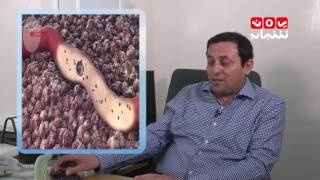 صحتك   غدة البروستاتا مع د.منتصر الرواشدة   #قناة_يمن_شباب