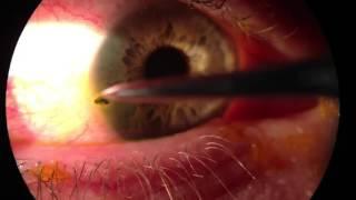 Процесс удаления окалины из глаза